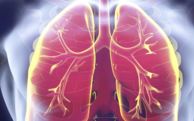 Medicamentos que aumentan el riesgo de neumonía. Por Joan-Ramon Laporte y David Healy
